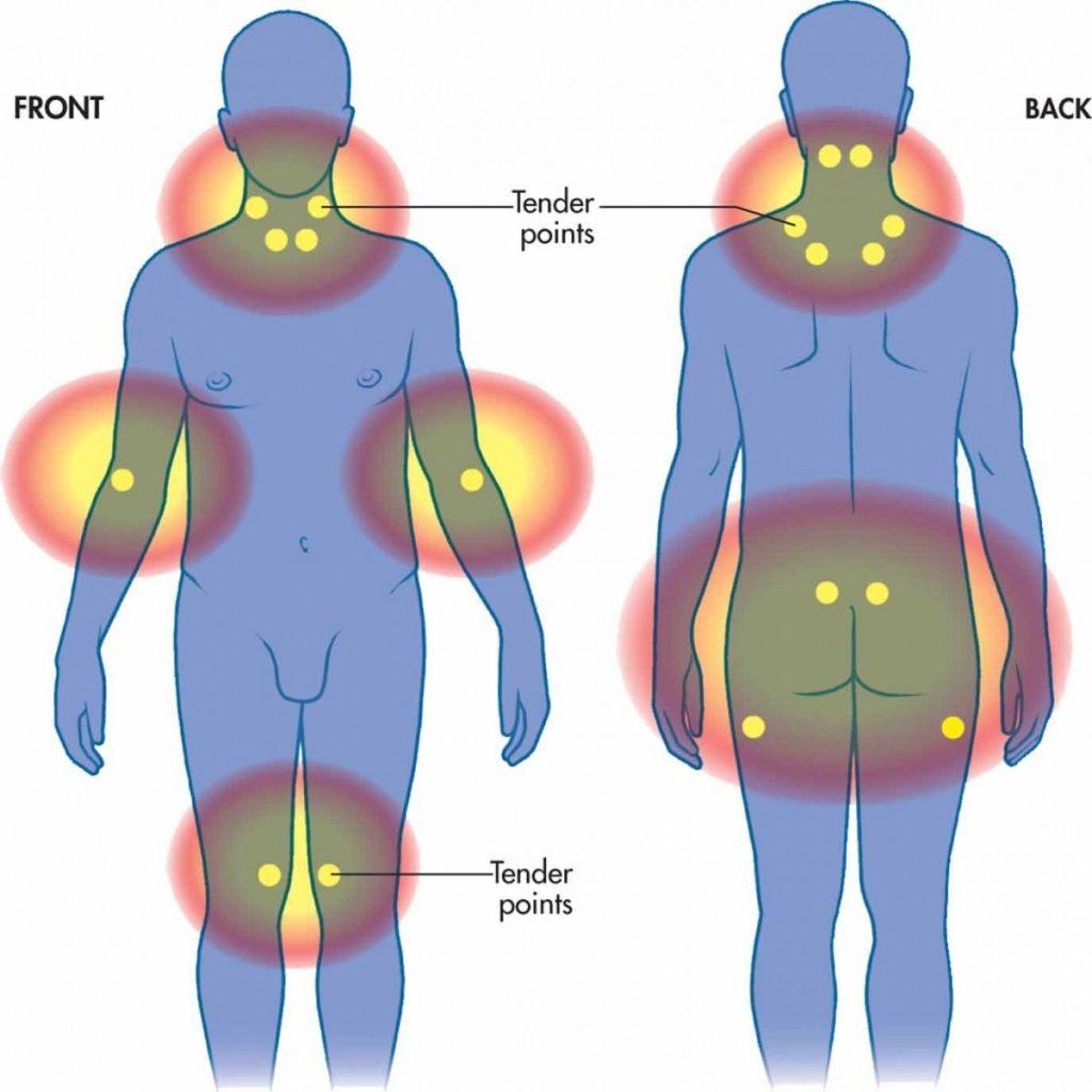 tenderpoints fibromyalgie drukpunten